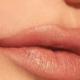 botox lip fillers birmingham mi