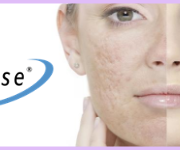 laser acne scar treatment birmingham mi