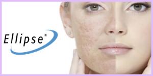 laser acne scar treatment birmingham mi