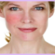 laser rosacea treatment detroit birmingham mi