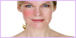 laser rosacea treatment birmingham mi