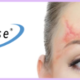 laser scar removal treatment birmingham mi