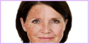 laser sun damage treatment birmingham mi