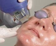 fraxel anti-aging treatments birmingham MI