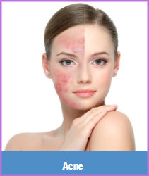 laser acne treatment birmingham mi