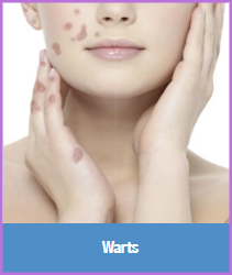 Birmingham Med Spa | Laser Skin Care, Acne, Scar & Wart Treatments