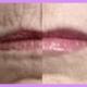 lip line resurfacing