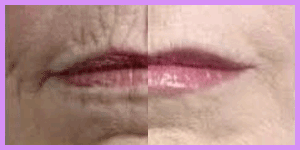 lip line resurfacing