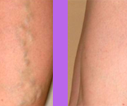 varicose vein treatment birmingham mi