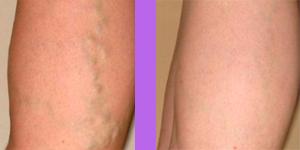 varicose vein treatment birmingham mi