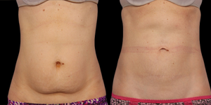 coolsculpting southfield
