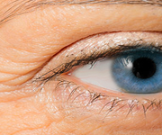 facial filler eye treatment birmingham, mi