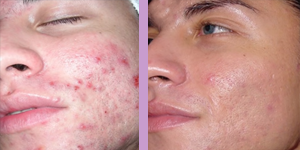 dermalinfusion acne treatment