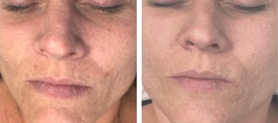 facial microneedling west bloomfield
