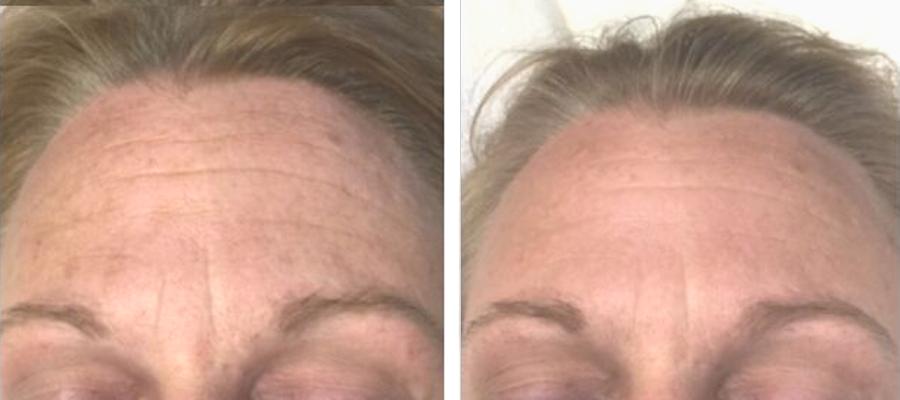 forehead microneedling