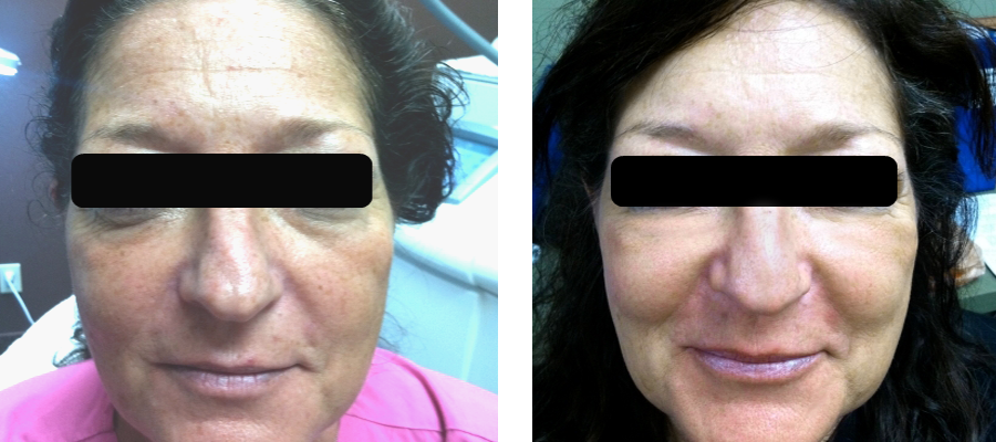 New SkinStylus® Microneedling Before & After Photos - AMAE