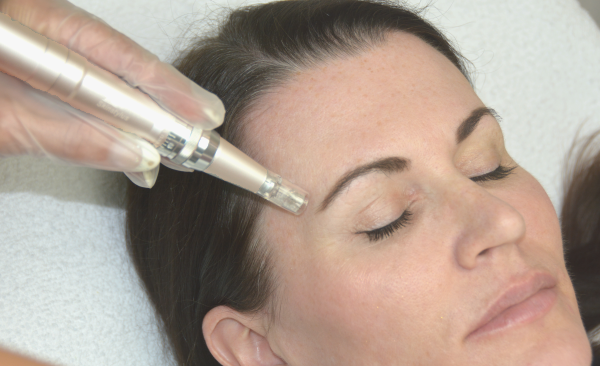 microneedling west bloomfield