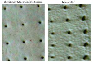 microneedling vs microroller