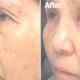 Dermalinfusion Skin Resurfacing