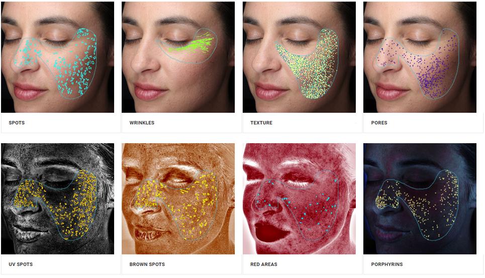 Visia skin analysis Birmingham, MI