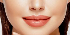 lip fillers - troy, mi