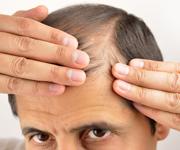 prp hair loss treatment west bloomfield mi