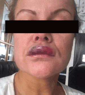 Warning: DIY at Home Facial Fillers Cause Death - AMAE Med