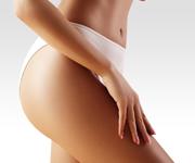 cellulite treatment birmingham