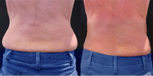 coolsculpting-muffin-top