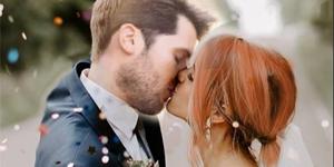 brides wedding botox fillers