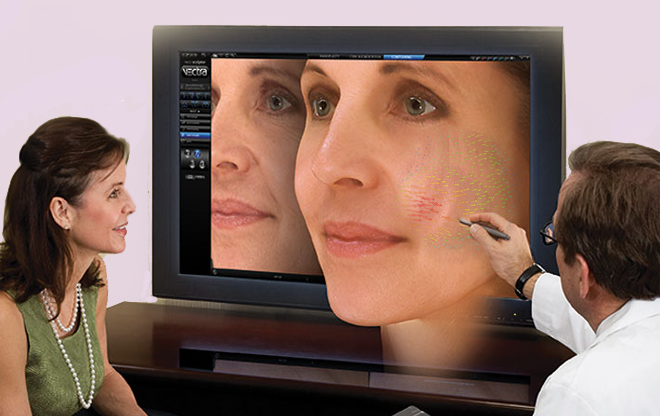 Vectra 3D Skin Imaging
