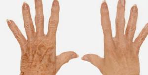 ipl hand age spots